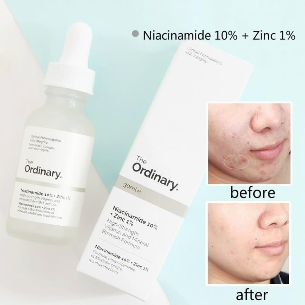 Serum Trị MụnThe Ordinary Niacinamide 10% + Zinc 1% Serum 30ml
